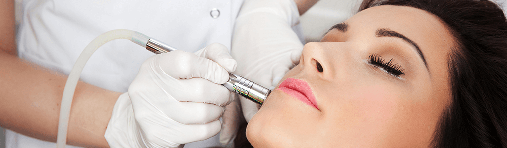 Microdermabrasion Banner