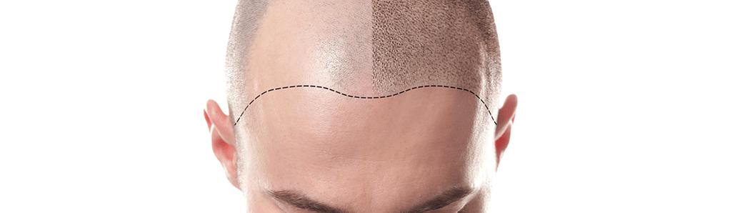 Scalp Micropigmentation Banner
